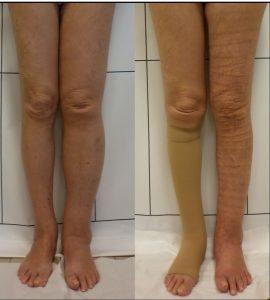 I nostri risultati nel trattamento del linfedema